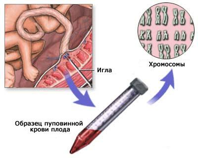 Взятие пункции пуповины плода с 18 недель беременности (кордоцентез)