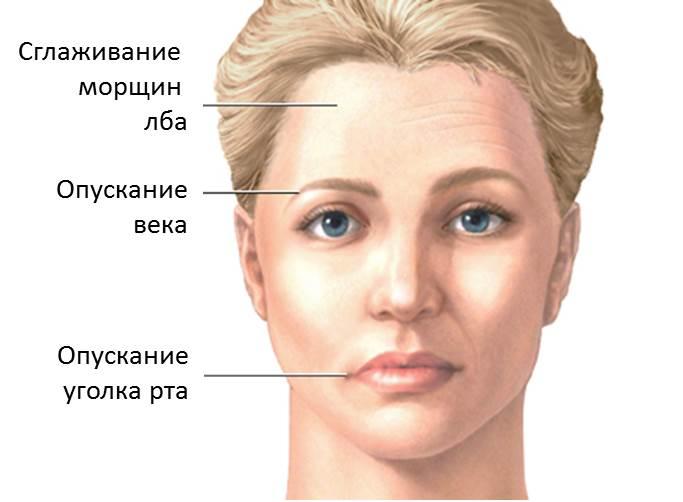 Признаки паралича лицевых нервов