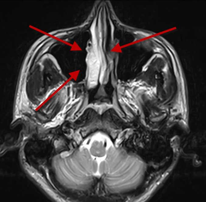 Снимок МРТ носа, стрелкой указывает на область с гайморитом