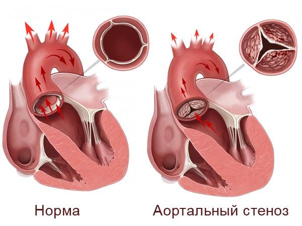 На рисунке сравнение здорового сердца и с аортальный стенозом