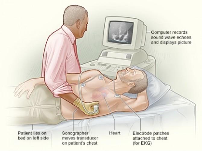 Специалист осуществляет процедуру эхокардиограммы сердца