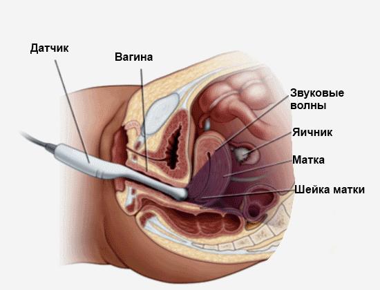 Врач проводит обследование органов малого таза женщины с помощью ультразвукового