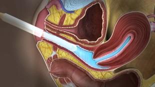 ультразвуковые датчики для трансвагинального узи с презервативами