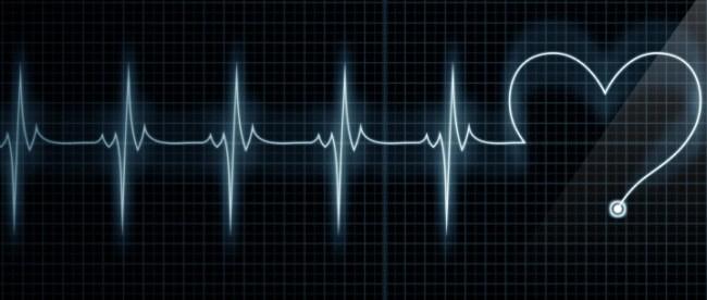 схематичное изображение сердечного ритма