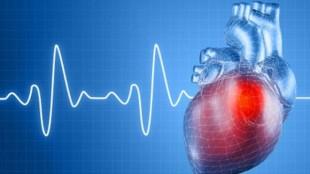 схематическое изображение сердца