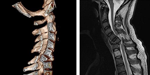 МР-томограмма перелома позвонка шейного отдела